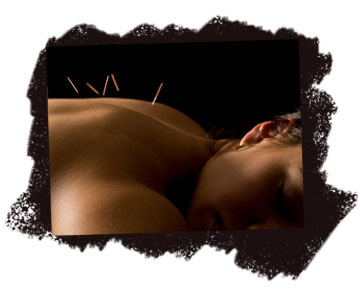 Acupuncture Massage Melbourne